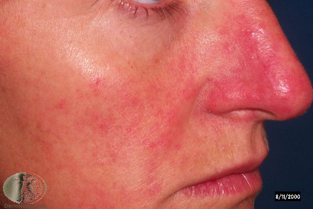 Rosacea Dermatologist Dr. Keith A. Knoell