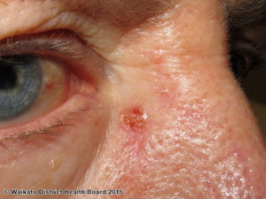 Basal cell carcinoma skin specialist