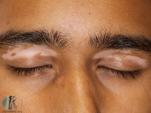Vitiligo affects the eye area